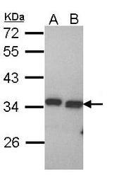 NBP1-31699 - PECR