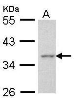 NBP1-31700 - AEN / ISG20L1
