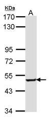 NBP1-31702 - Sestrin-3 (SESN3)