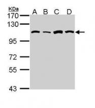 NBP1-31706 - AARS
