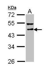 NBP1-31715 - DLST / DLTS