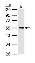NBP1-31716 - ALDH3B2 / ALDH8