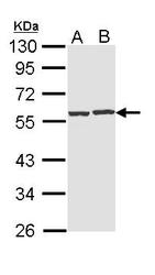 NBP1-31718 - CAP1