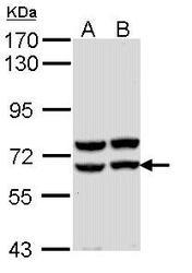NBP1-31724 - Alpha-amylase 2A