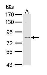 NBP1-31732 - Tyrosine-protein kinase ITK/TSK