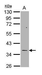 NBP1-31739 - TBXAS1