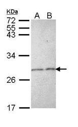 NBP1-31748 - Stathmin / STMN1