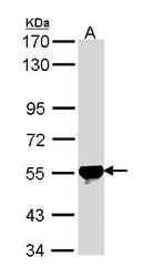 NBP1-31749 - ALDH2