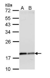 NBP1-31753 - ARF1