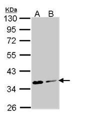 NBP1-31754 - Aminoacylase-2 / ACY2