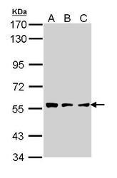 NBP1-31758 - Tripeptidyl-peptidase 1 (TPP1)