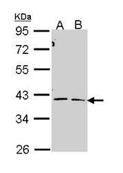 NBP1-31759 - CTH
