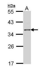 NBP1-31763 - ELAVL1 / HUR