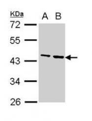 NBP1-31766 - Fibrinogen gamma chain