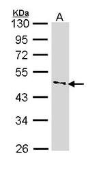 NBP1-31775 - CD119 / IFNGR1