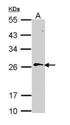 NBP1-31776 - RAN