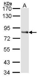 NBP1-31899 - Cholinesterase