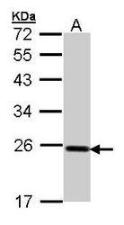NBP1-32002 - Glutathione peroxidase 2 / GPX2
