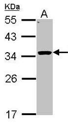 NBP1-32027 - 11-beta HSD1 / HSD11B1
