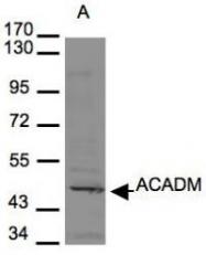 NBP1-32028 - ACADM