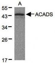 NBP1-32032 - ACADS