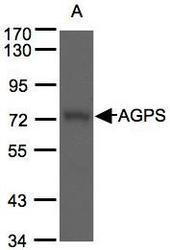 NBP1-32033 - AGPS / AAG5