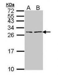 NBP1-32038 - Natriuretic peptides B