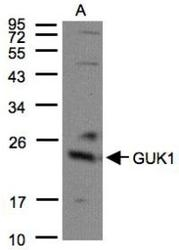 NBP1-32059 - Guanylate kinase / GUK1