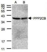 NBP1-32069 - PPP2CB