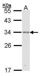 NBP1-32072 - Cytochrome C1