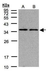NBP1-32075 - PCNA