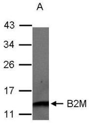 NBP1-32079 - Beta-2-microglobulin