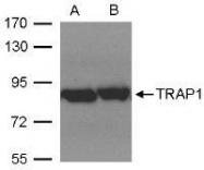 NBP1-32097 - TRAP1 / HSP75