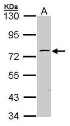 NBP1-32104 - ZNF143
