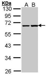 NBP1-32120 - PHF1
