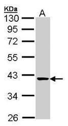 NBP1-32121 - Transaldolase (TALDO1)