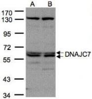NBP1-32127 - DNAJC7 / TPR2