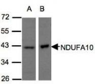 NBP1-32146 - NDUFA10