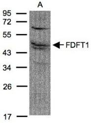 NBP1-32147 - Squalene synthetase