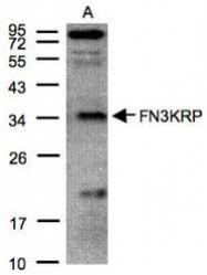 NBP1-32151 - Ketosamine-3-kinase