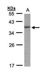 NBP1-32153 - CDC34