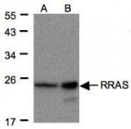 NBP1-32156 - RRAS