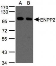 NBP1-32162 - Autotaxin / ENPP2