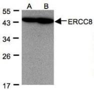 NBP1-32166 - ERCC8