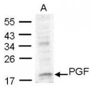 NBP1-32169 - Placenta growth factor / PGF