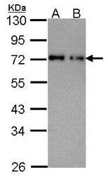 NBP1-32177 - NUP62