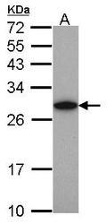 NBP1-32191 - UCHL1 / PGP9.5