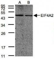 NBP1-32195 - EIF4A2
