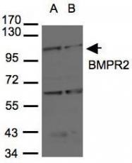 NBP1-32218 - BMPR2