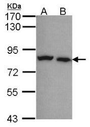 NBP1-32222 - Calpain-5